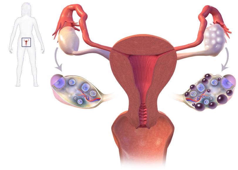pierderea în greutate cu sindrom ovarian polichistic